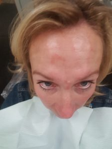Botox-My Why and My Results — Sunkissed and Blessed